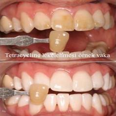 BioWhiten-Tetra_2.jpg