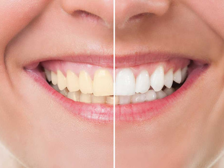 Why do teeth become darker and what is the mechanism of action of whitening gels?