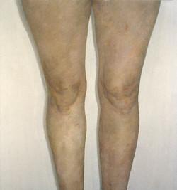 Sam's Legs