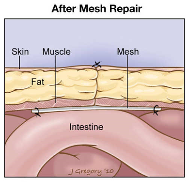after-mesh.png