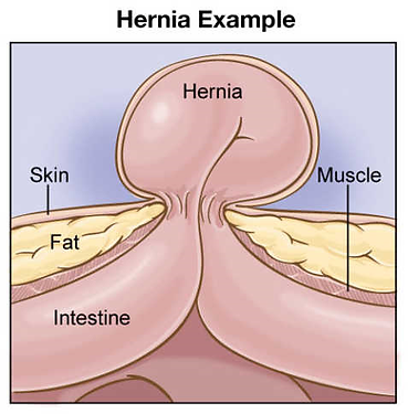hernia-ex.png