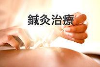 Acupuncture_edited_edited_edited.jpg