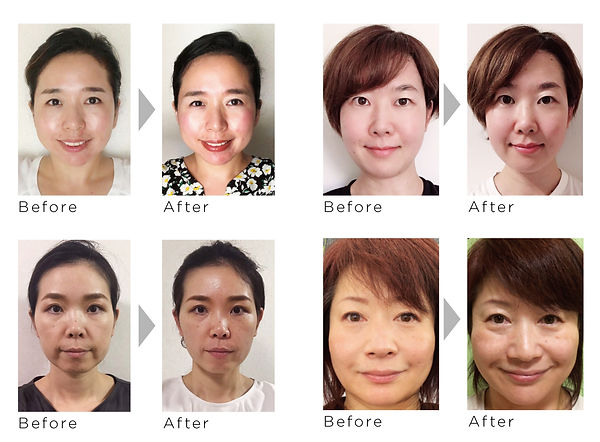 face_lifting_camp_before_after.jpg