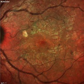 Repentina vision diabetes de perdida