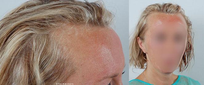 Docteur Patricia Cahuzac - micro greffe du cheveu | FUE FUT | exemples patients féminins