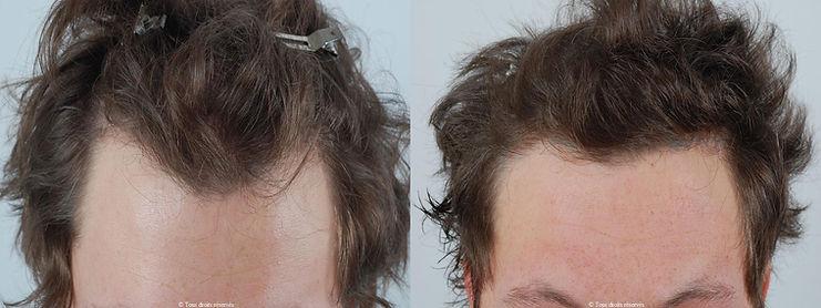 Docteur Patricia Cahuzac - micro greffe du cheveu | FUE FUT | exemples patients masculins