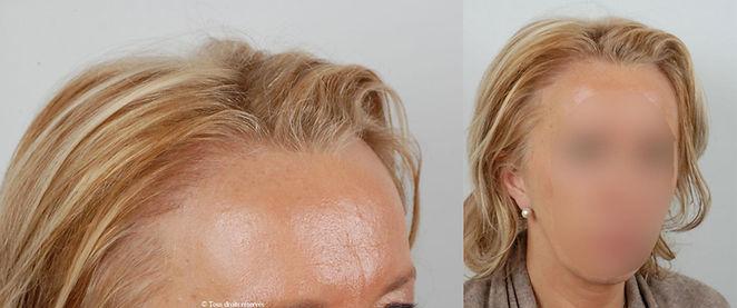 Docteur Patricia Cahuzac - micro greffe du cheveu   FUE FUT   exemples patients féminins
