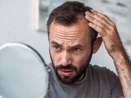 a-man-experiencing-hair-loss-because-of-