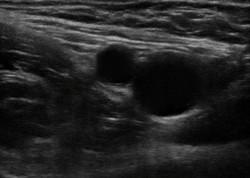 femoral block anatomy