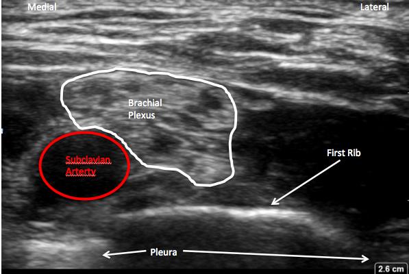 new supraclavicular anatomy labeled