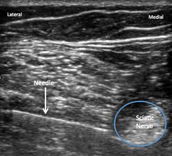 needle and sciatic nerve 3