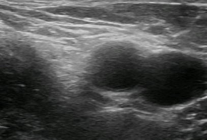 femoral block anatomy 2