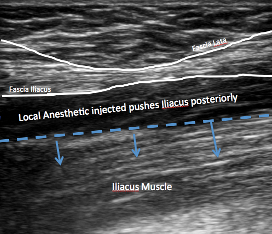 ficb anatomy local injected
