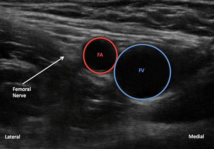 pnbschool/ learn ultrasound guided femoral nerve blocks, Muscles