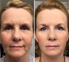 face-facial-exercises-before-after-photos (283).JPG