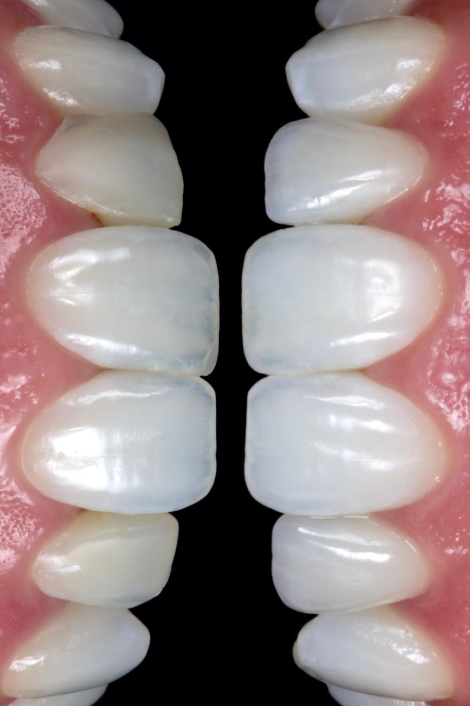 Lentes de contato dentais antes e depois. Daniel Malta Dentista em Florianópolis.