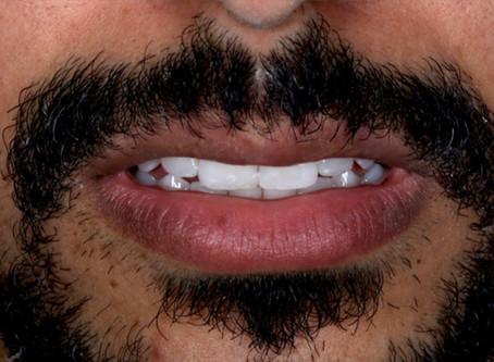 Dentes brancos sim, artificiais não!