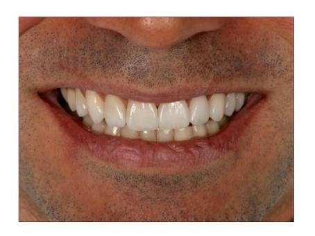 Editorial com lentes de contato dentais
