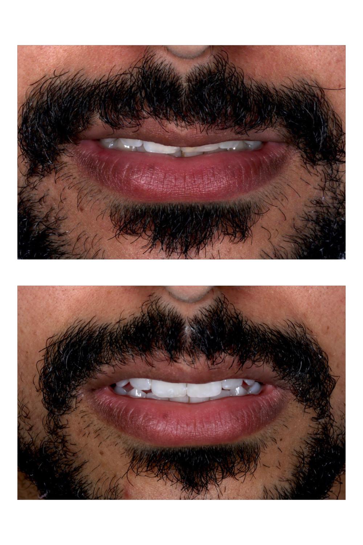 Clareamento dental associado a resina composta e uma faceta de porcelana no incisivo superior esquerdo.
