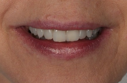Lentes de contato dentais para rejuvenescimento