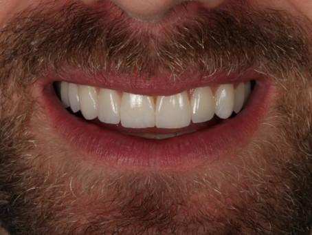 Lentes de contato dentais - branco natural
