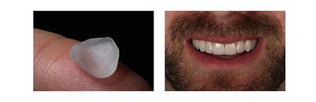 Antes e depois Lentes de Contato Dental