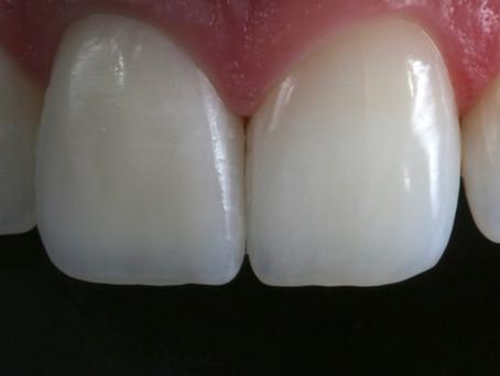 Challenging nature | Copiar a natureza é o desafio da Odontologia Estética!