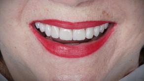 Descubra a melhor porcelana para lentes de contato dentais