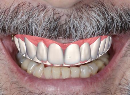 Odontologia Digital para o Rejuvenescimento do Sorriso