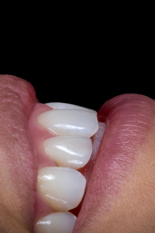 Facetas de porcelana. Daniel Malta Odontologia Estética em Florianópolis.