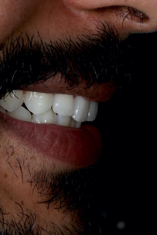 Clareamento dental seguido de restaurações de resina e uma porcelana
