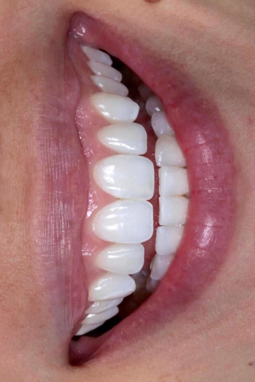 Lentes de contato dentais. Daniel Malta Dentista Florianópolis.