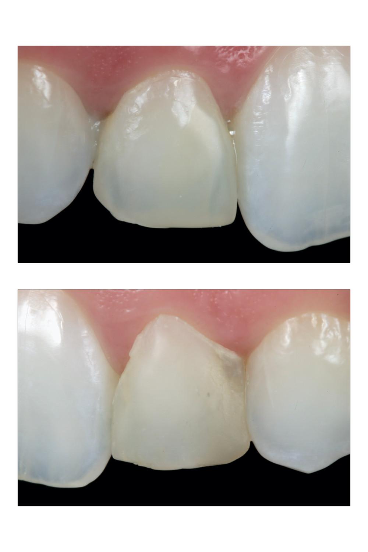 Facetas de resina composta. Daniel Malta Odontologia Estética em Florianópolis.