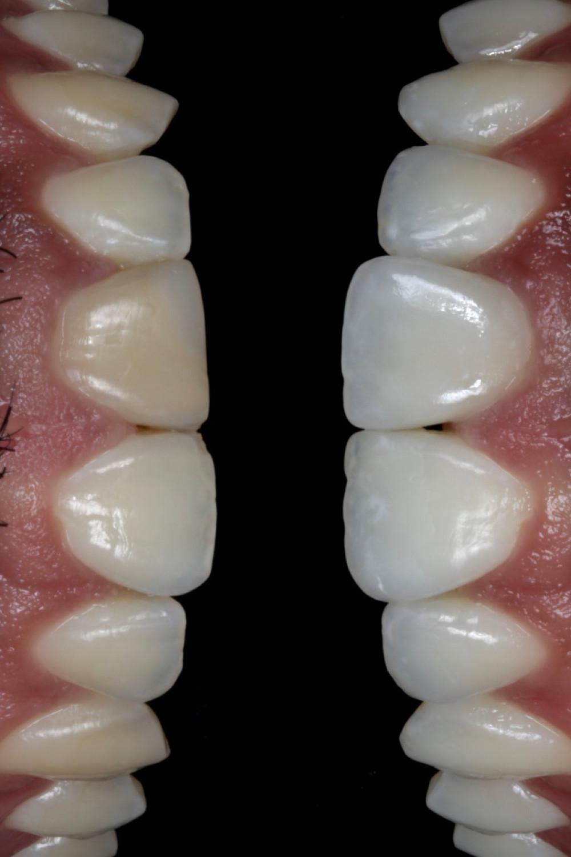 Clareamento dental seguido de resina composta e uma faceta de porcelana.