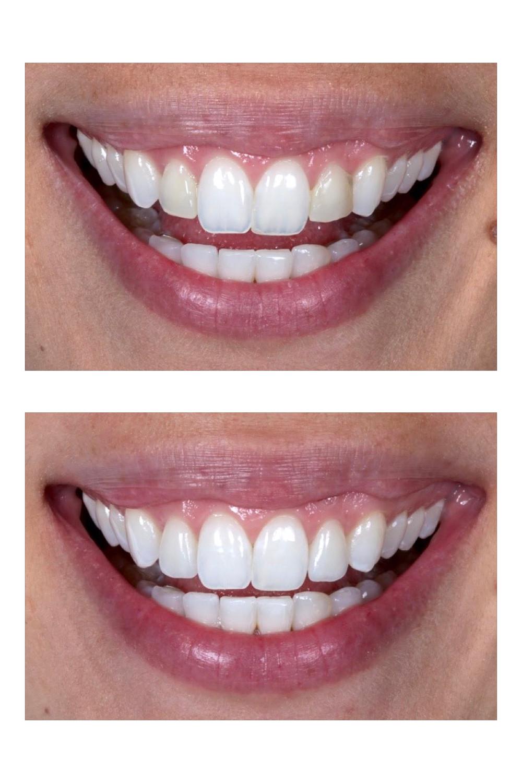 Lente de contato dental. Antes e depois. Daniel Malta Odontologia Estética em Florianopolis.