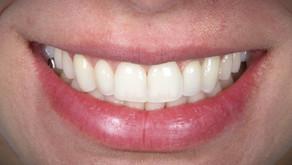 Deseja ter um sorriso lindo sem colocar lentes em todos os dentes? Então leia este artigo!