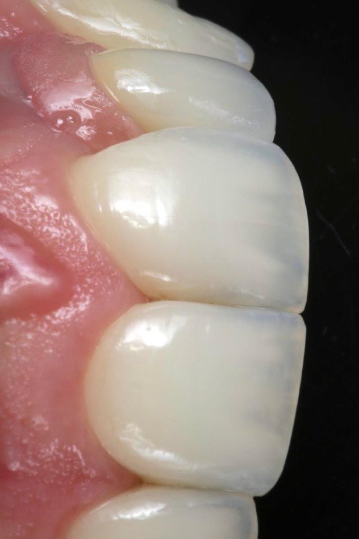 Super close up em vista lateral com fundo escuro para mostrar os detalhes ópticos do trabalho executado em resina composta e porcelana. Veja a gengiva de porcelana do incisivo lateral esquerdo.