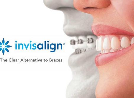 Invisalign - Maxima Tecnologia em Ortodontia
