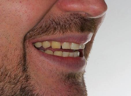 Bruxismo e lentes de contato dental