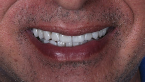 Escurecimento por tetraciclina   Reabilitação estética e funcional