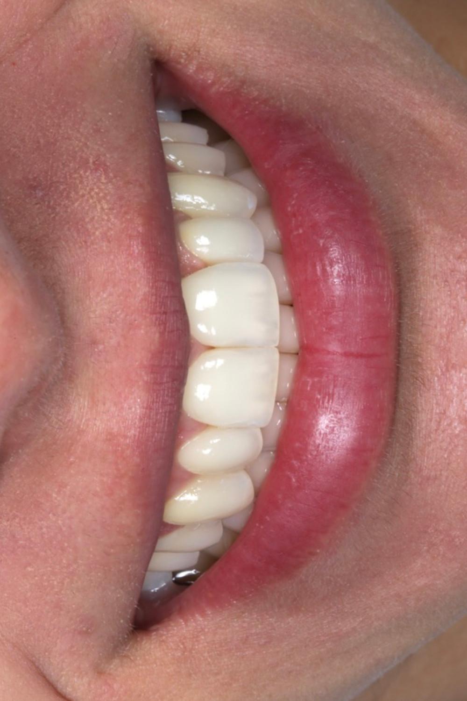 Resultado final feito com resina composta e porcelana em dentes anteriores.