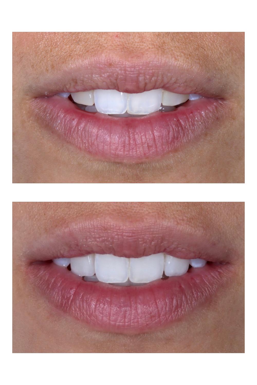 Antes e depois. Facetas de porcelana. Daniel Malta Odontologia estetica em florianopolis.