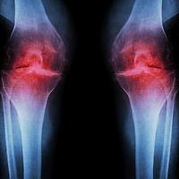 osteoarthritis-of-the-knee.jpg
