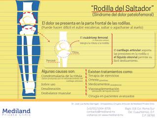 """""""Rodilla del Saltador"""""""