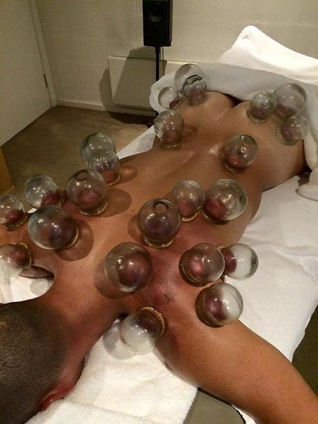 Chinese cupping, sports massage, deep tissue massage, Myotherapy, South Melbourne