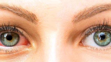 ¿Qué es el síndrome del ojo seco y cómo puedo prevenirlo?