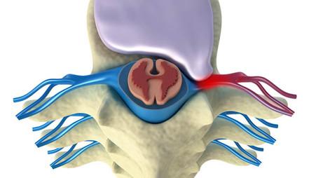 Hernia de disco: causas, síntomas y tratamientos