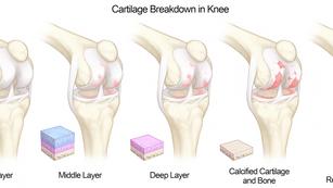 Cartilage Breakdown of the Knee