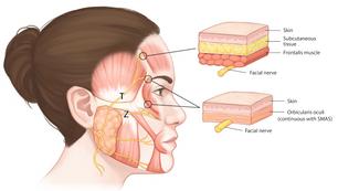 Path of Facial Nerve