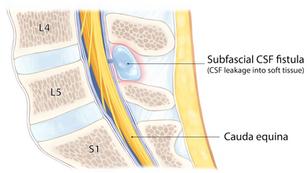 Cutaneous CSF Fistula With Leakage
